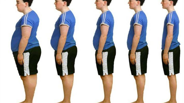 Combata a obesidade, consulte um endocrinologista